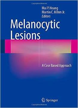 Download Melanocytic Lesions: A Case Based Approach