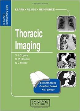 Download Thoracic Imaging: Self-assessment Colour Review