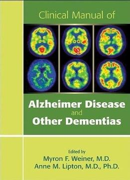 Download Clinical Manual Of Alzheimer Disease & Other Dementias