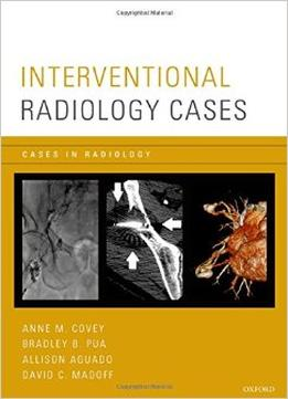 Download Interventional Radiology Cases