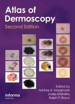 Download An Atlas Of Dermoscopy (2nd Edition)